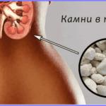 Чем опасна мочекаменная болезнь