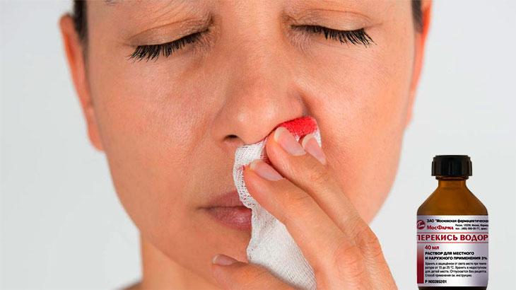первая помощь при носовом кровотечении